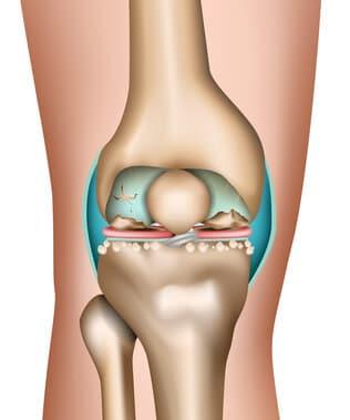 Artrite Artrose Osteoartrite Joelho Goiania 2